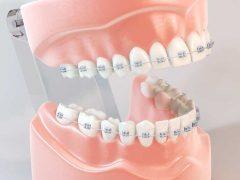 メタルブラケットによる歯列矯正がされてる歯の模型